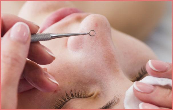 Acne Facial Treatments