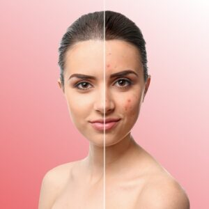 Acne Treatment Program   Pure Skin Pro
