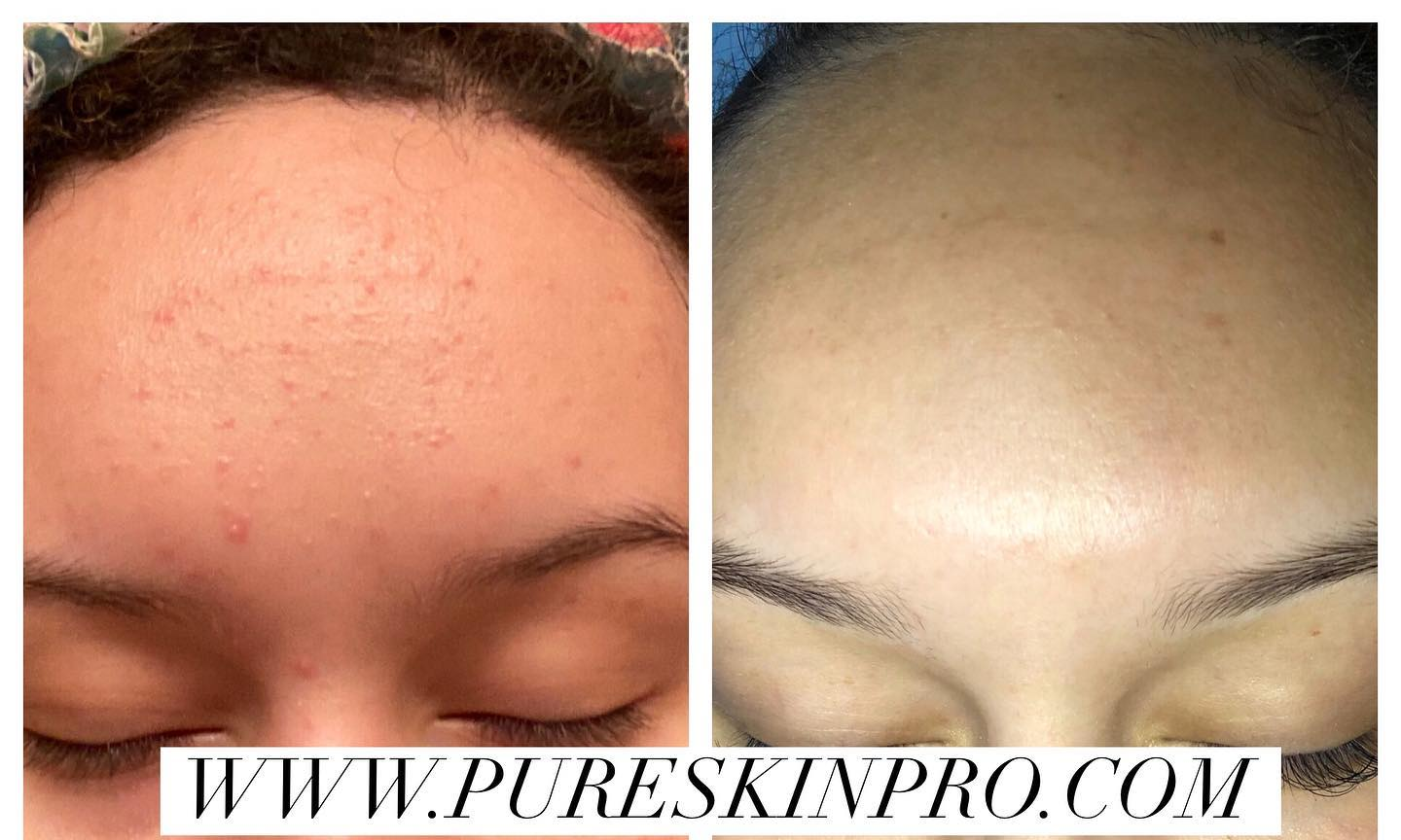 before-after-acne-treatment-12