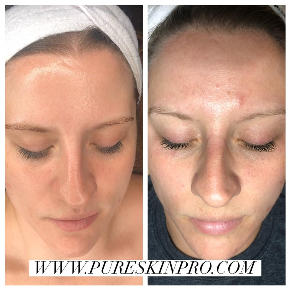 before-after-acne-treatment-15