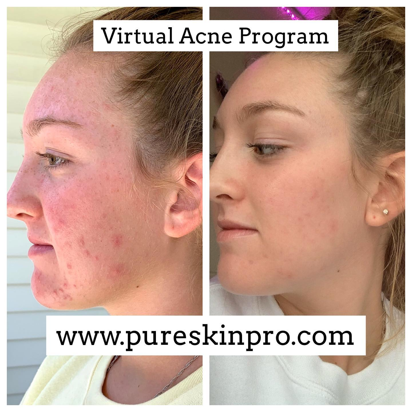 before-after-acne-treatment-2