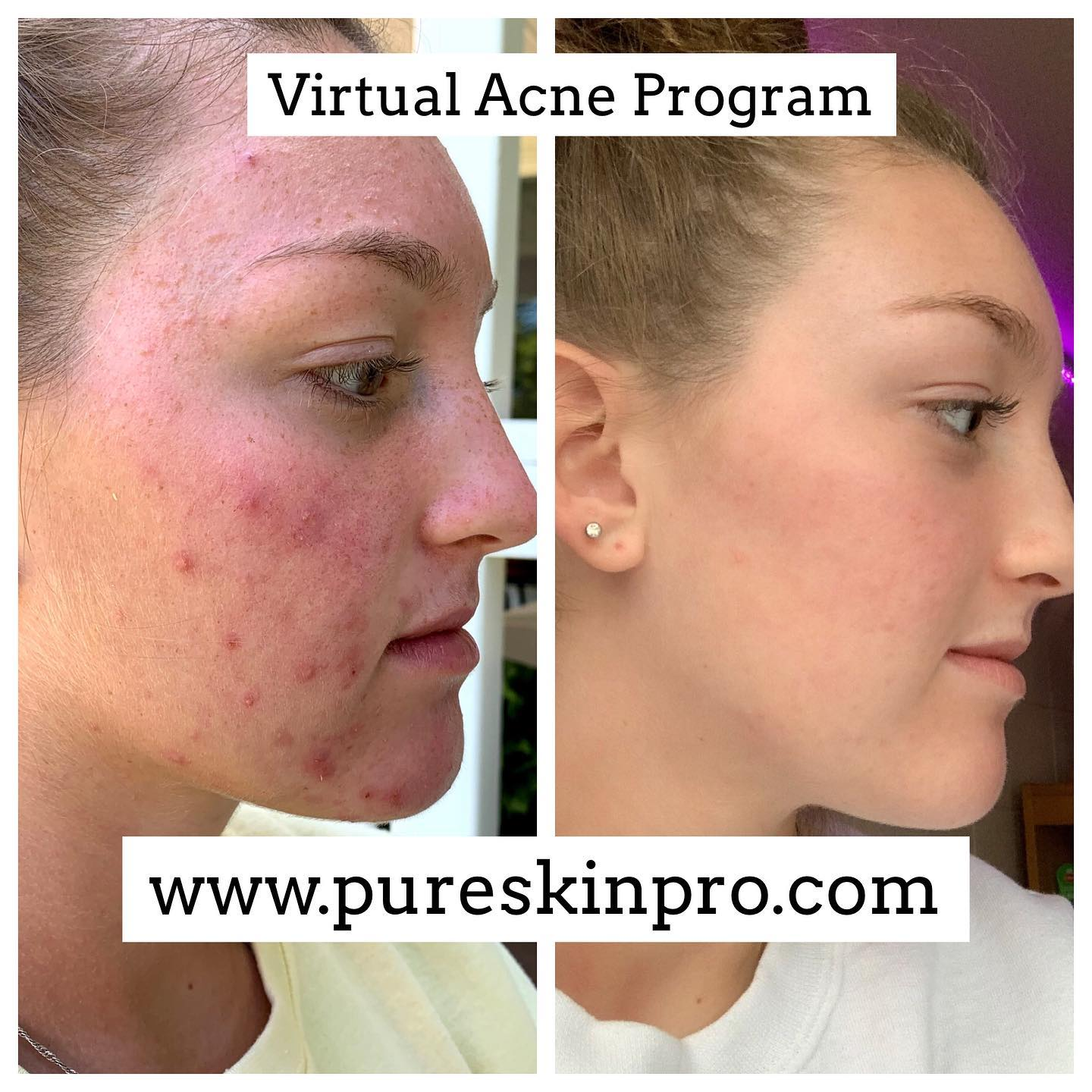 before-after-acne-treatment-3