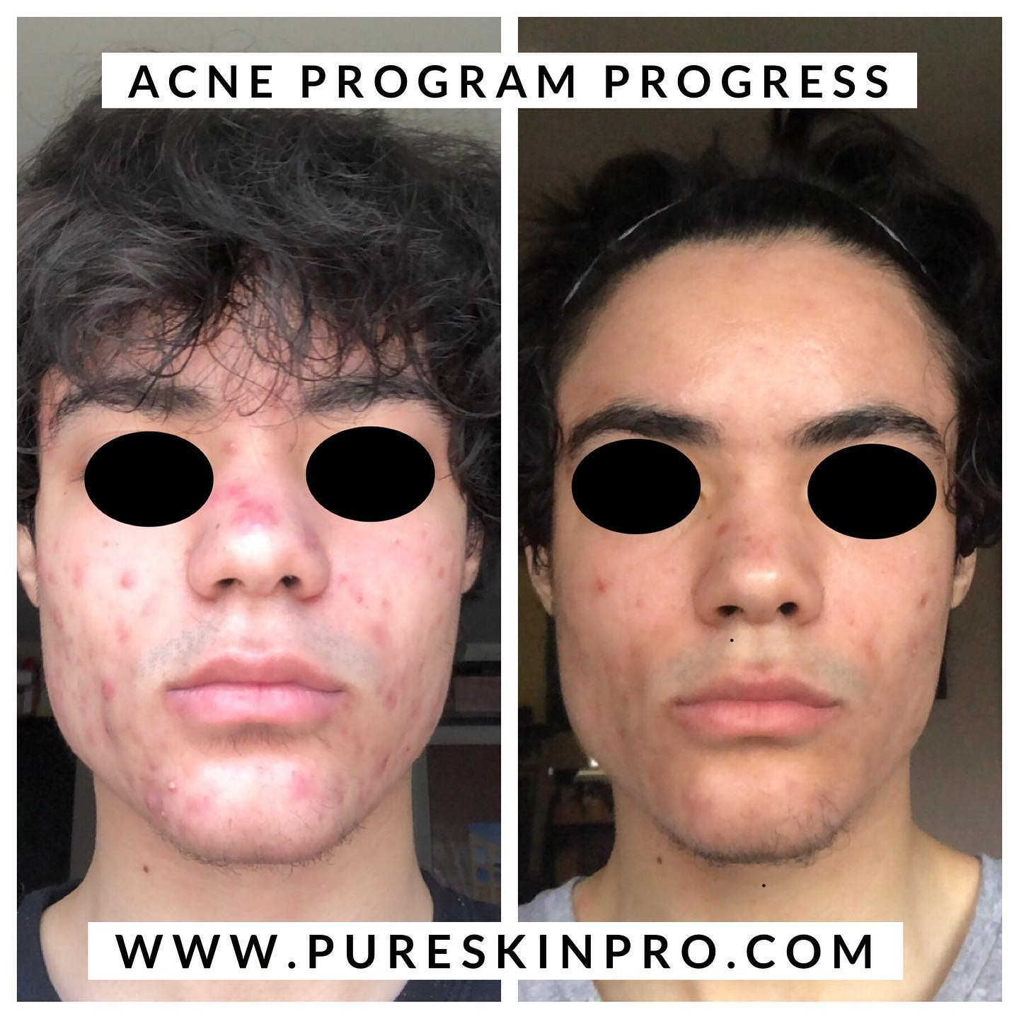 before-after-acne-treatment-7