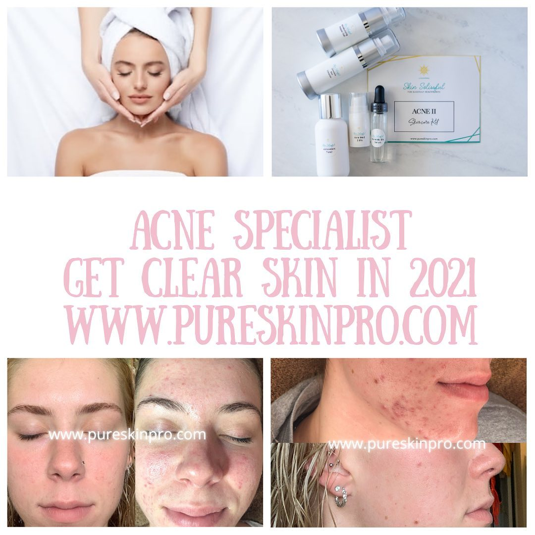 before-after-acne-treatment